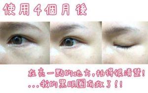 eye-kirara使用4個月後