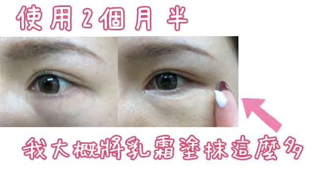eye-kirara使用心得-使用2個月半