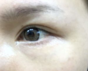 8-eye kirara-使用後-最後