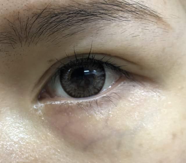 1-eye kirara-使用前