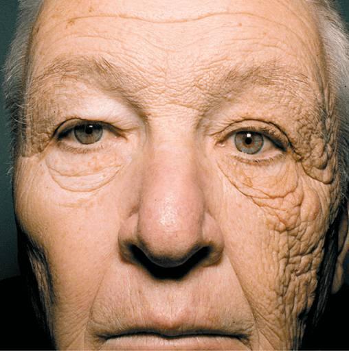 加速肌膚老化